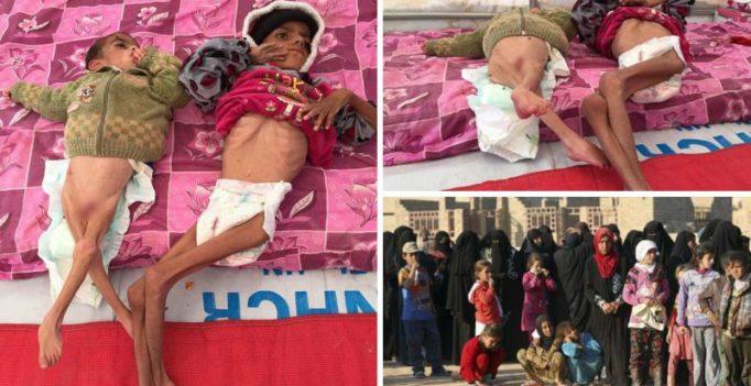Mosul's skeleton children: Kids starve to death in ISIS battleground