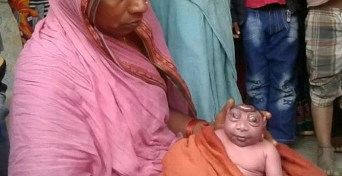 Child born with deformed features termed alien, supernatural in Bihar