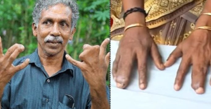 Family in Kerala has webbed fingers, refuses surgery calling it curse from god
