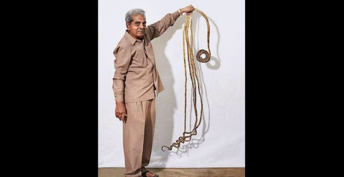 Indian Guiness World Record holder to cut fingernails after 66 yrs